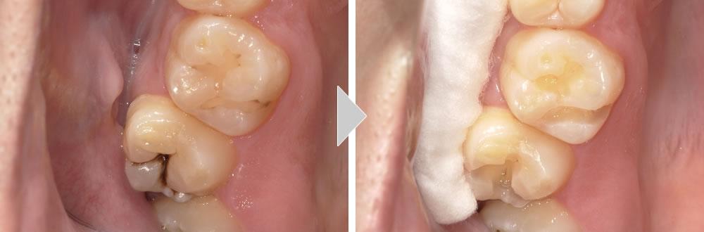 虫歯治療の症例