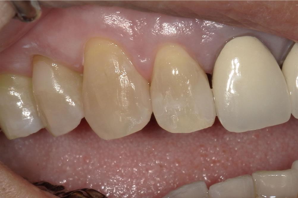 低侵襲な虫歯治療の症例
