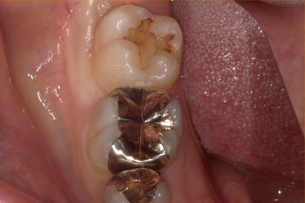 虫歯治療で削った歯をレジンで修復した症例