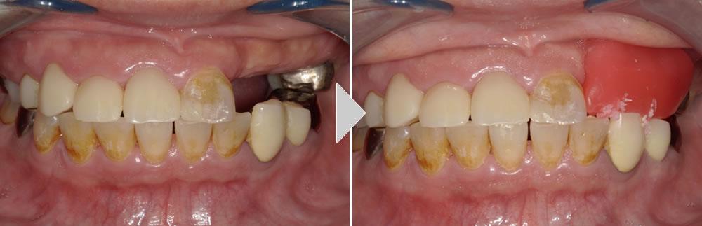 CAD/CAM冠と保険義歯による咬み合わせの回復症例