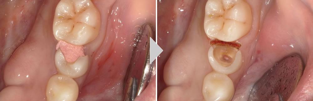 CAD/CAMによる咬み合わせの回復症例
