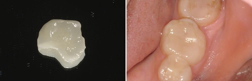 セラミックインレーで歯を修復した症例