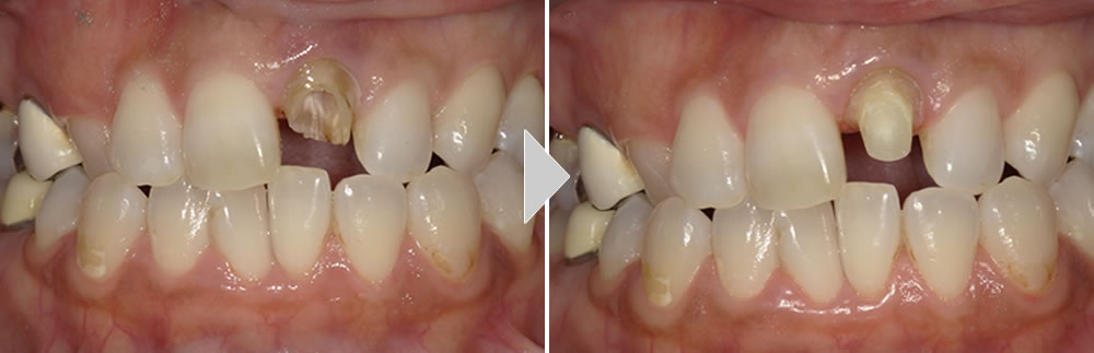前歯のセラミック治療症例