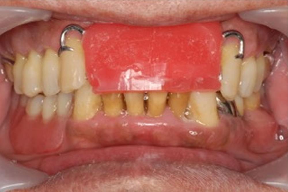 口腔内での調整