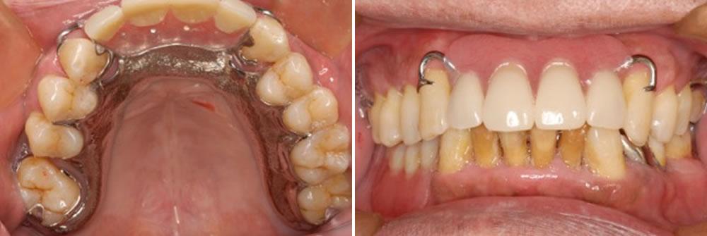 金属床義歯(コバルトクロム合金)を装着