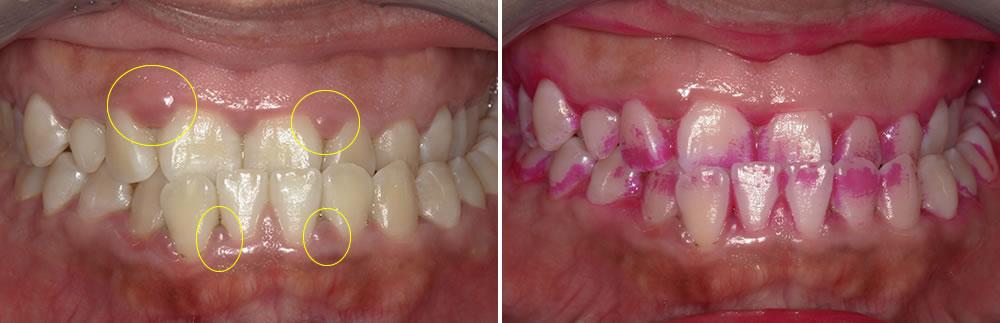 歯周病治療(歯石取り・クリーニング)