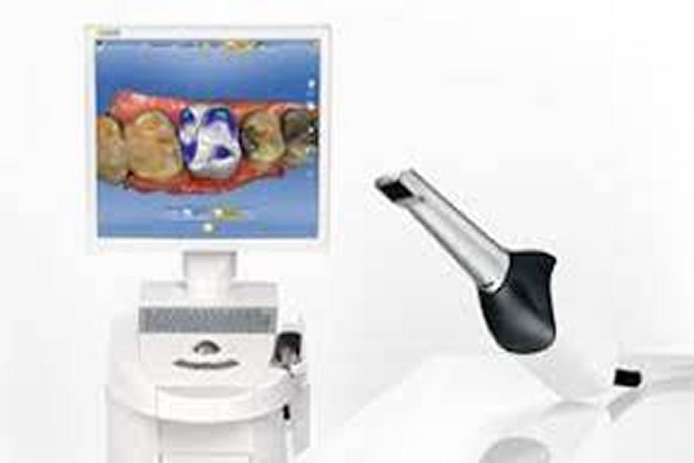 歯型の採取