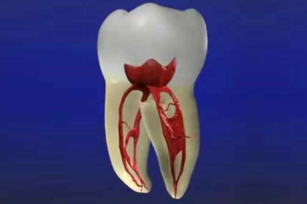 虫歯・歯周病の予防